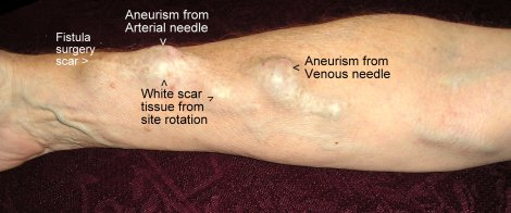 [typical lower forearm access site called an a.v. fistula after several years of use]