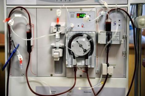 [the front panel of a typical dialysis machine; circular pump at center]